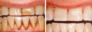 gingivitis_pigments-removal